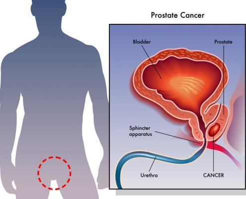 סרטן בערמונית