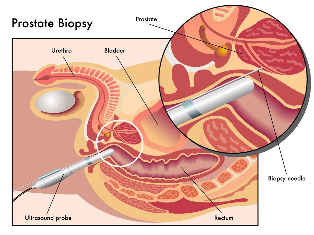 ביופסיה ערמונית