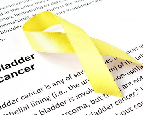 טיפול בסרטן בשלפוחית השתן