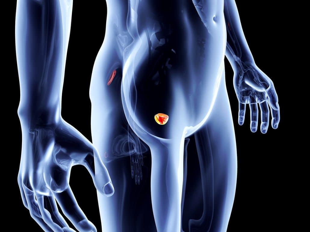טיפול פוקאלי בסרטן הערמונית